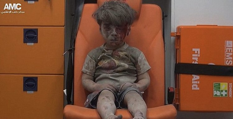 survivor from syria bombing